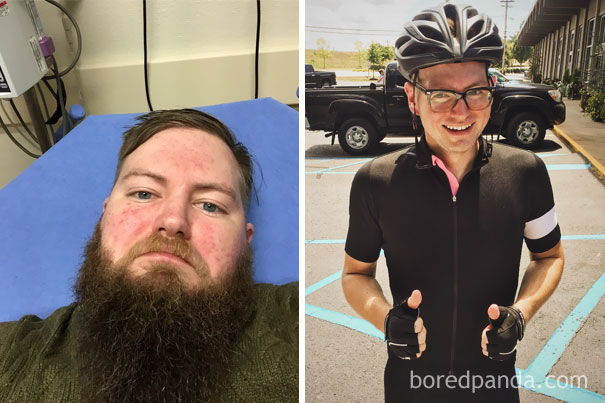 before-after-sobriety-quit-drinking-photos5